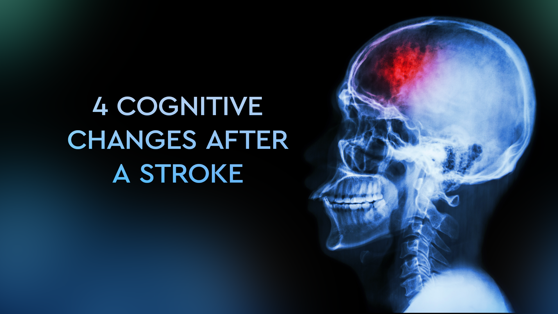 what happens after a stroke